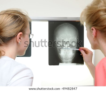 laboratory assistant doctor examining x-ray image - stock photo