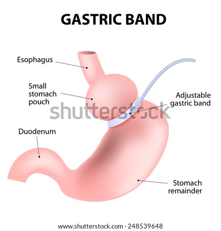 laparoscopic adjustable gastric band. lap-band, a band, or LAGB. illustration