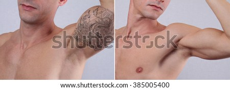 Laser tattoo removal before and after. Attractive Man with tattoo on his arm - stock photo
