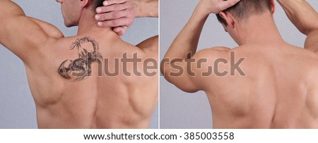Laser tattoo removal before and after. Attractive Man with tattoo on his back skin  - stock photo