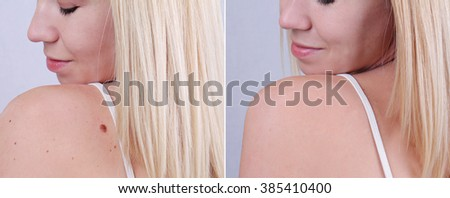 Laser treatment for birthmark removal before and after.  - stock photo
