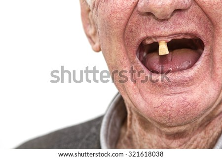 Last Tooth - stock photo