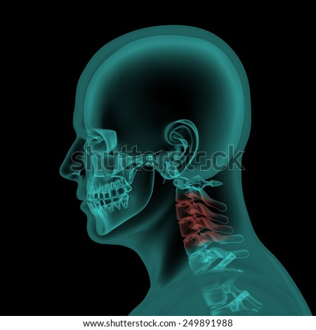 Lateral x-ray scan view of human skull and neck - stock photo