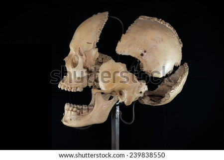 Left of separate skull - stock photo
