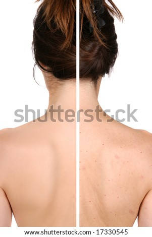 Left side: good and smooth skin after treatment - right side pimples and bad skin before treatment - stock photo