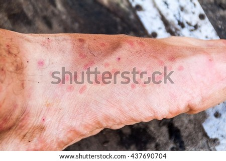 Leg covered by the bites of sandflies, jungle in Peru - stock photo