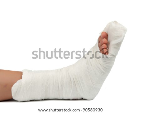 leg in a plaster cast on a white background - stock photo