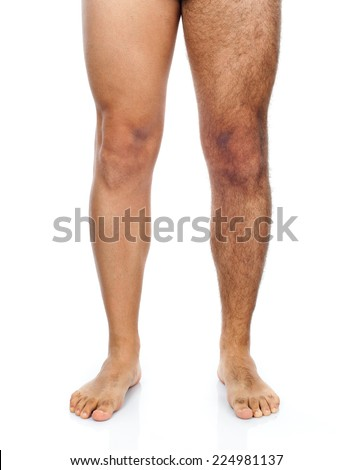 Legs of a man, his right leg is shaved while the left very hairy.