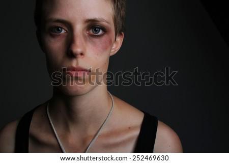 Life Hurts  - stock photo