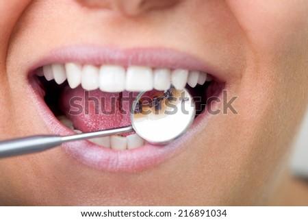 lingual braces on dental mirror, close up  - stock photo