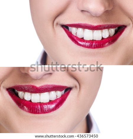 Lips before and after filler injections