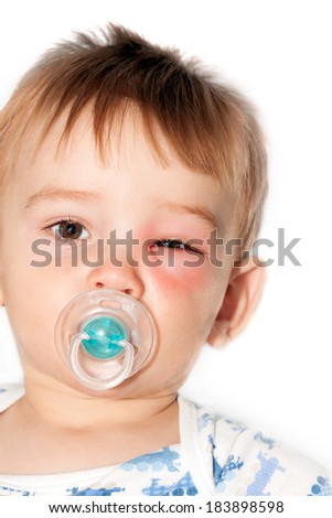 Little Boy - Dangerous Stings From Wasps Near The Eye - Isolated Image - stock photo
