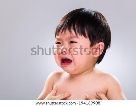 Little boy has skin problem - stock photo