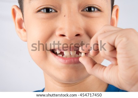 Little boy showing baby teeth toothless close up waiting for new teeth - stock photo