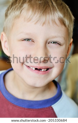 little boy showing that he lost milk tooth