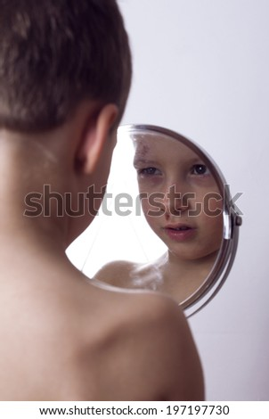 Little boy whipped close up - stock photo