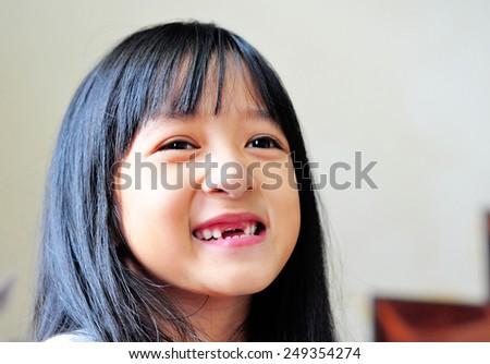 little girl and broken teeth  - stock photo