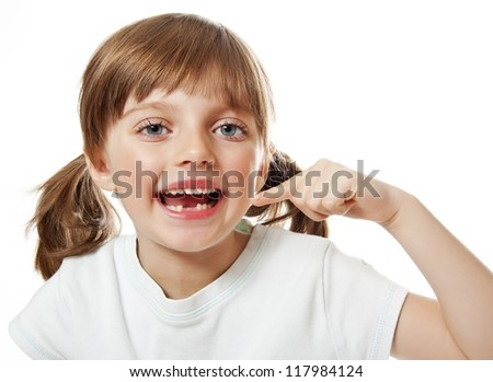 little girl pointing her missing teeth - stock photo
