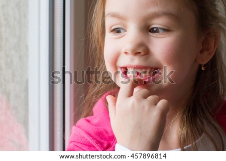 Little girl showing a lost tooth - stock photo