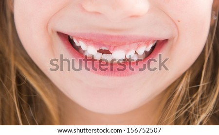 little girl without one tooth smiles close-up