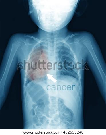 longs cancer in children  - stock photo