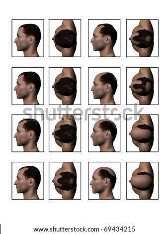 Losing Hair, Hair Loss, Balding, Receding Hairline