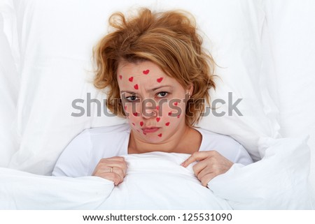 Lovesick concept - woman laying in bed with heart shaped rash on face - stock photo