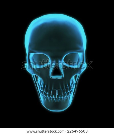 Luminous in x-rays of the skull