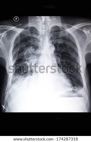 Lung cancer - stock photo