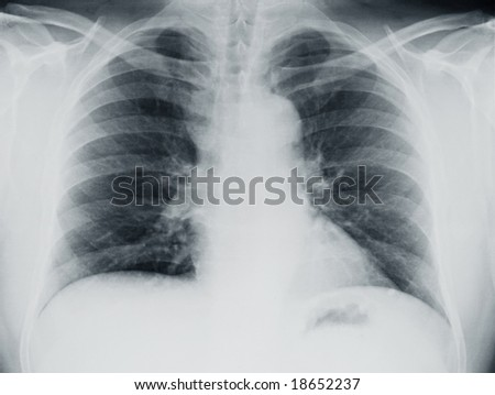 Lung X-ray - stock photo