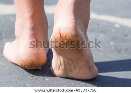 Macro ảnh ghép của nứt gót chân.  Nam nhìn lại.