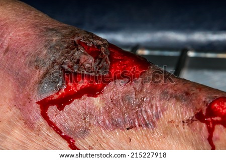 macro shot of a skin scratch with red blood - stock photo