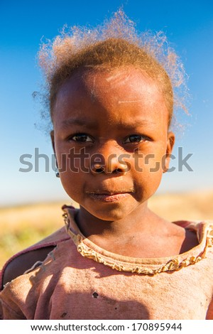 MADAGASCAR - JULY 3, 2011: Portrait of an unidentified beautiful little girl in Madagascar, July 3, 2011. Children of Madagascar suffer of poverty due to the unstable situation.