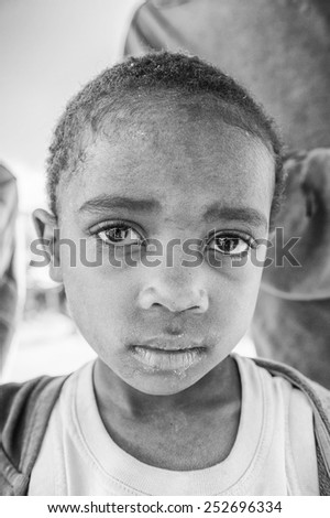 MADAGASCAR - JULY 1, 2011: Portrait of an unidentified little girl in Madagascar, July 1, 2011. Children of Madagascar suffer of poverty due to the unstable situation.