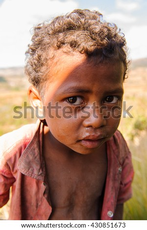 MADAGASCAR - JUNE 30, 2011: Portrait of an unidentified shy little boy in Madagascar, June 30, 2011. People of Madagascar suffer of poverty due to the unstable situation.