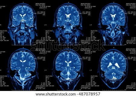 Magnetic resonance imaging (MRI) of the brain