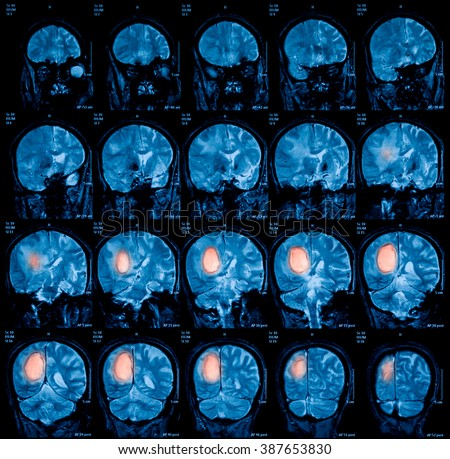 Magnetic resonance imaging (MRI) of the brain, brain tumor, brain abscess, coronal view