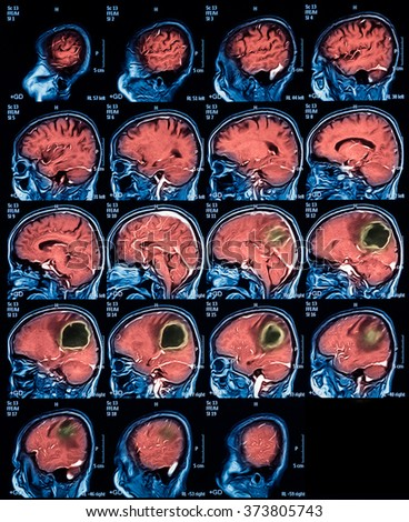Magnetic resonance imaging (MRI) of the brain, brain tumor, sagittal view