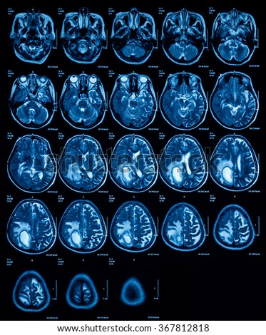 Magnetic resonance imaging (MRI) of the brain tumor, transverse view.
