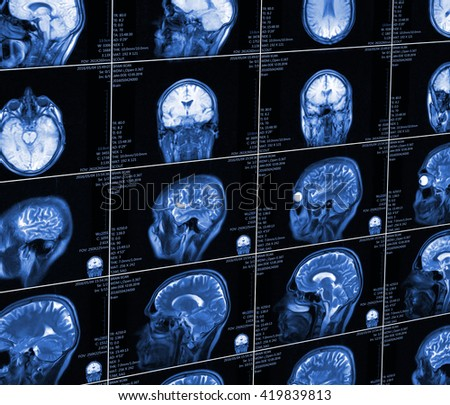 Magnetic resonance imaging of the brain