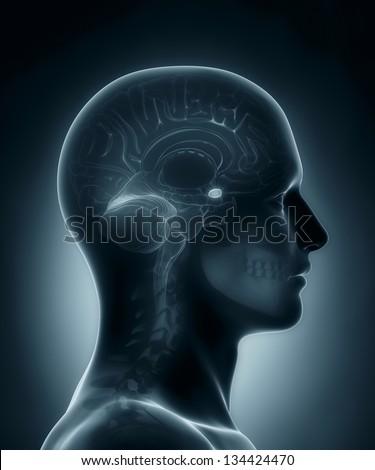 Male Amygdala medical x-ray scan - stock photo
