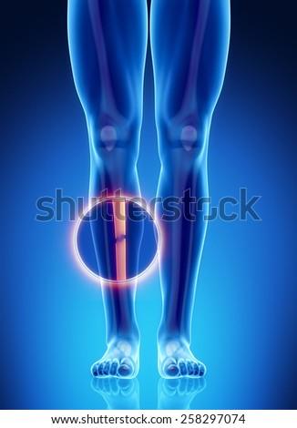 Male bone anatomy tibia broken fracture - stock photo