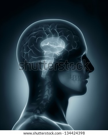 Male Brain stem medical x-ray scan - stock photo
