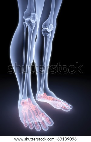 male feet under the X-rays. bones are highlighted in red.