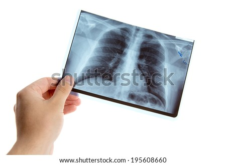 Male hand holding lung radiography, isolated on white background  - stock photo