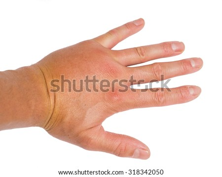 Male person showing swollen knuckles on left hand isolated on white - stock photo