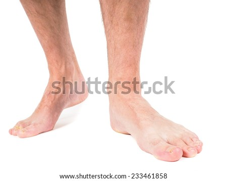 Male person with hairy legs, walking towards, against white background