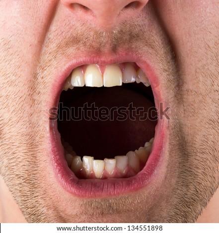 Рот фото