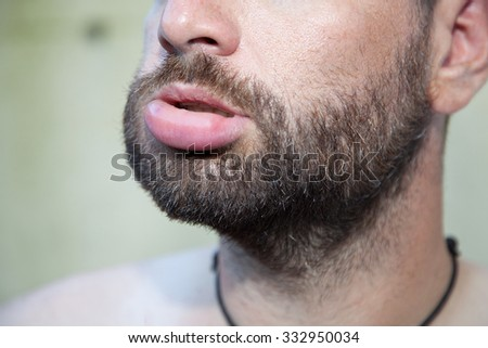 Male with swollen lip due to  bee sting - stock photo