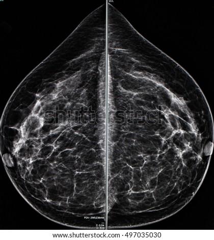 Mri breast cancer diagnosis
